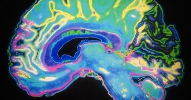 Researchers use tiny worm to trace the development of human brain